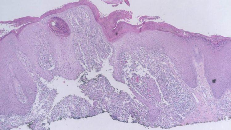 Human Mycobacterium marinum Aronson Infections